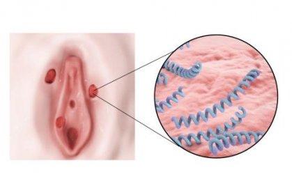 阴蒂肥大的表现 导致的原因是什么呢?