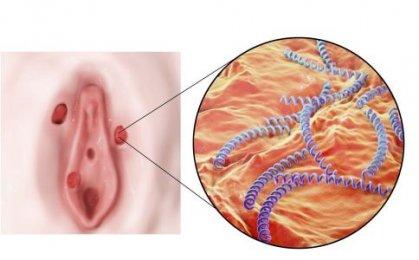 女人阴蒂瘙痒是怎么回事 阴蒂瘙痒的2种原因